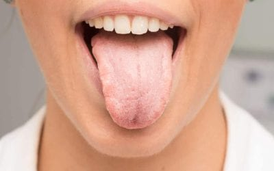 Top 5 Reasons You Have Dry Mouth