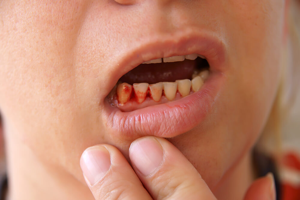 5 Reasons Your Gums May Be Bleeding